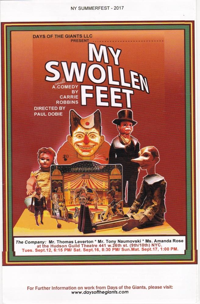 OOB My Swollen Feet